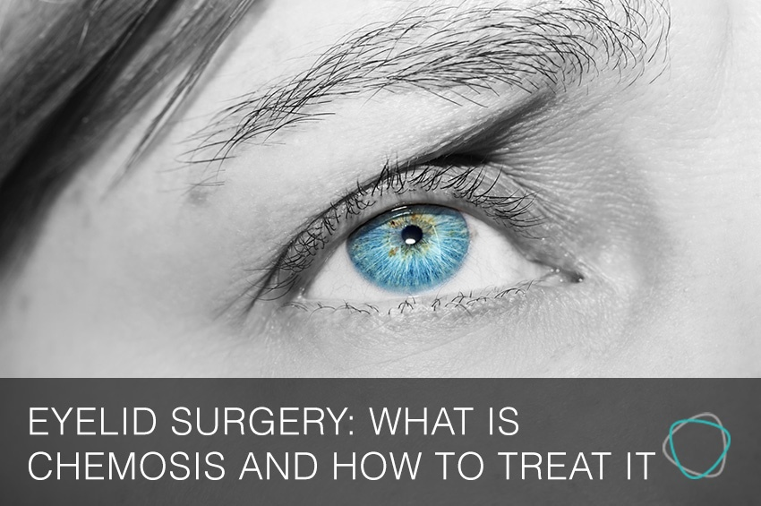 Eyelid_Surgery_Sydney_What_Is_Chemosis_And_How_To_Treat_It
