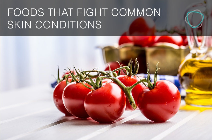 Foods_That_Fight_Common_Skin_Conditions.jpg
