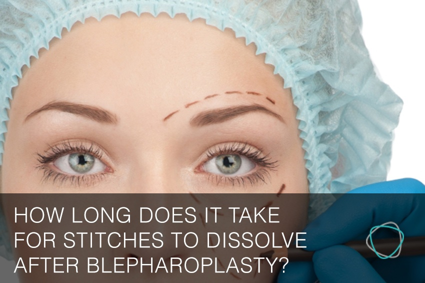 How_Long_Does_It_Take_For_Stitches_To_Dissolve_After_Blepharoplasty.jpg