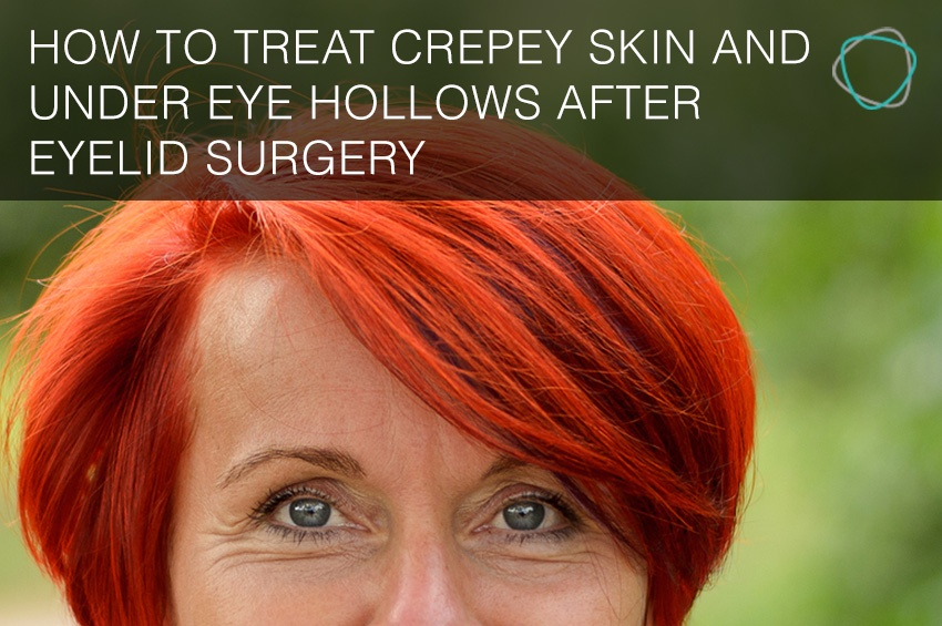 How_to_treat_crepey_skin_and_under_eye_hollows_after_eyelid_surgery.jpg