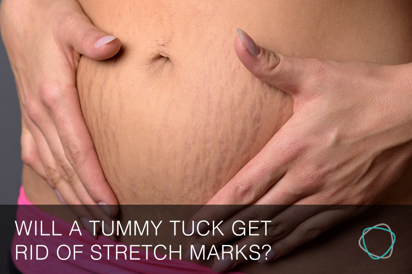 Will_A_Tummy_Tuck_Sydney_Get_Rid_Of_Stretch_Marks.jpg