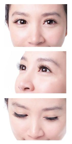 Asian-Double-Eyelid-Surgery-2