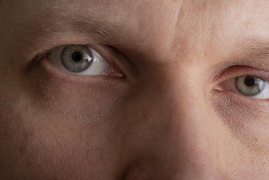 Hooded Eyelid - Middle Age
