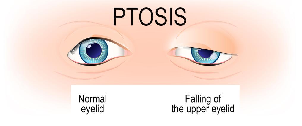 Ptosis Drooping Eyelid Surgery