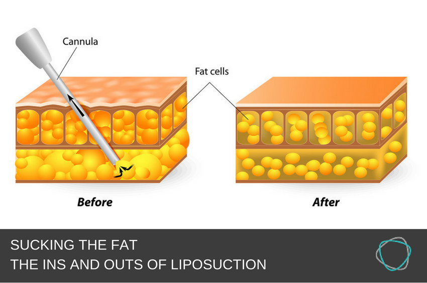 SUCKING THE FAT - THE INS AND OUTS OF LIPOSUCTION.png