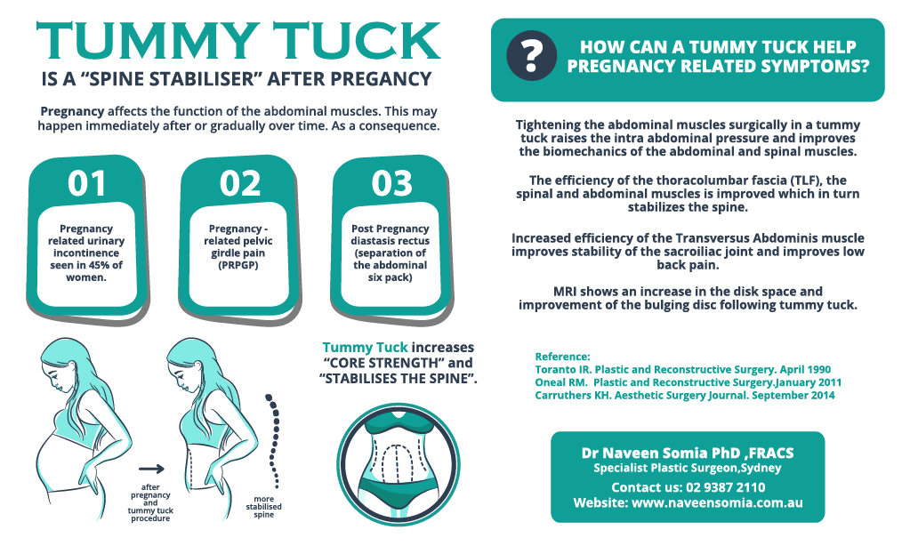 TUMMY TUCK IS A SPINE STABLISER