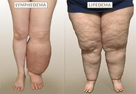 lymplipoedema comparison.jpg
