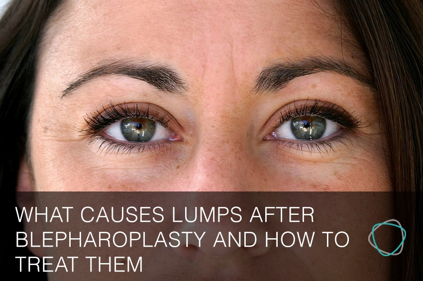 What Causes Lumps After Blepharoplasty And How To Treat Them