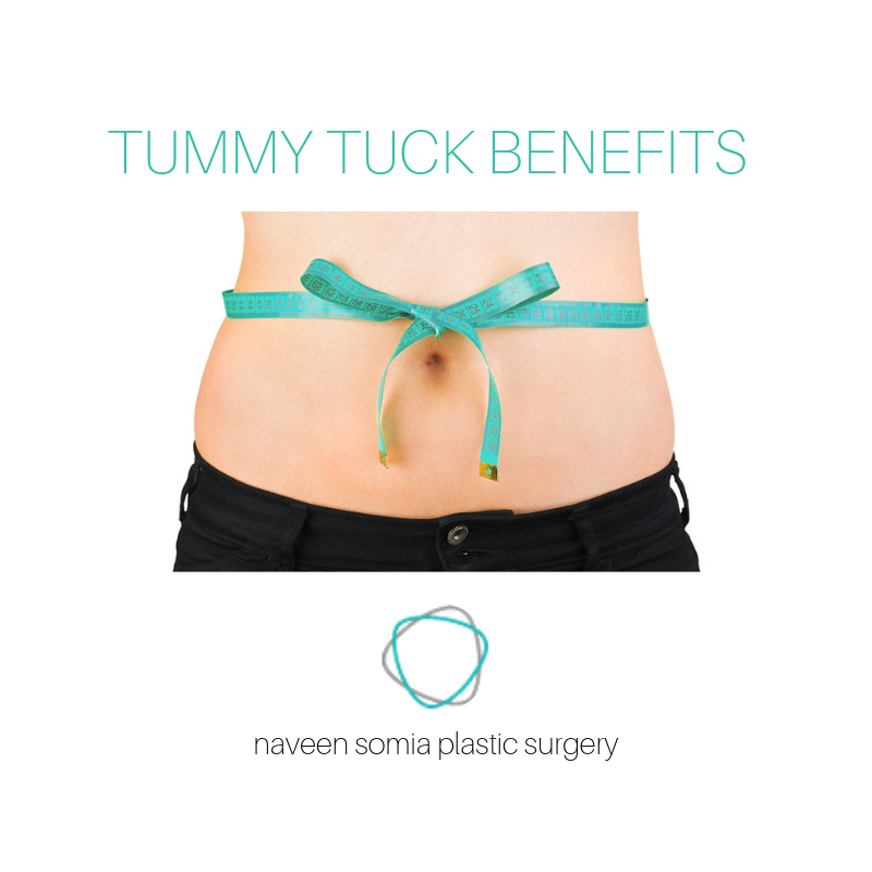 4 Key Benefits for Tummy Tuck
